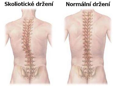 Skolióza - www.dfit.cz